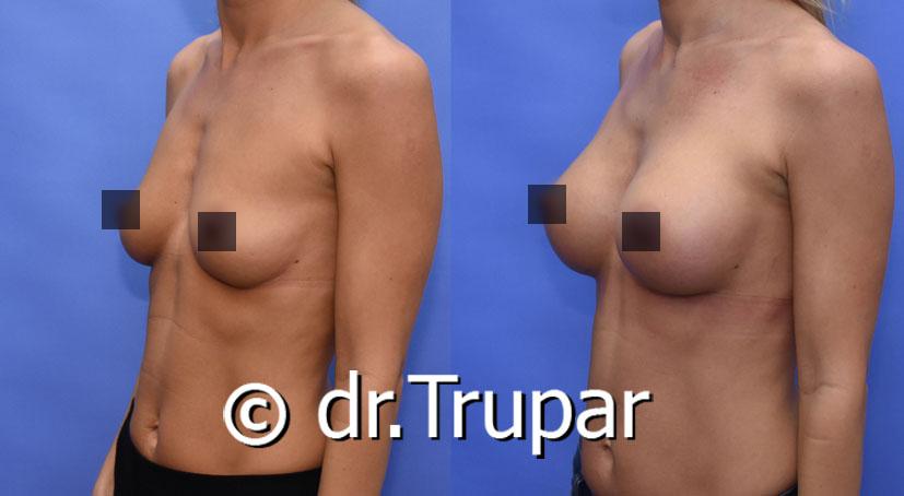 Fotky před a po plastice prsou