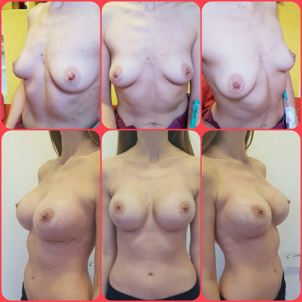 Plastika prsou, operoval MUDr. Sviták