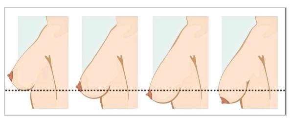 Ptóza prsou