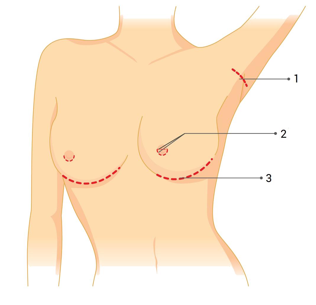 Vložení prsního implantátu
